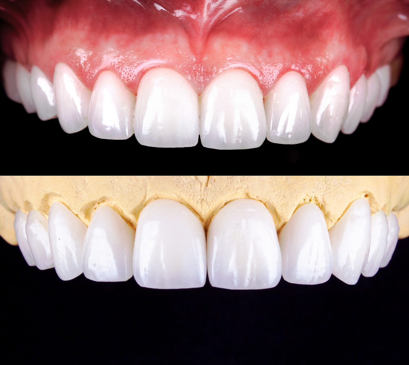 Smile Makeovers - Crowns and Bridges